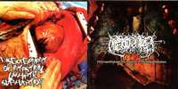 Hipermenorrea (Mex) / Disgorgement of Intestinal Lymphatic Suppuration (Fra) - Clinicopathologic Correlation in Thrombeombolism - CD