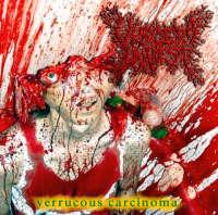 Viscera Infest (Jpn) - Verrucous Carcinoma - CD